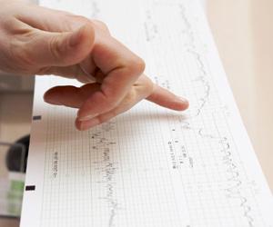 Elettrocardiogrammi