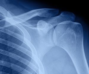 Ortopedia e Traumatologia a Padova